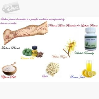 Natural Herbal Remedy for Lichen PlCensored