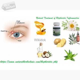 Natural Remedies for Blepharitis